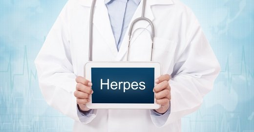 Herpes Health Advice